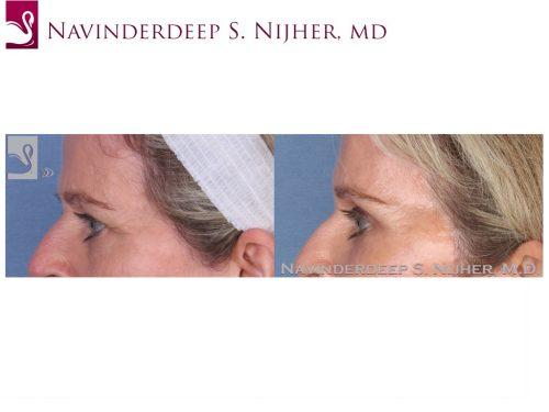 Eyelid Surgery Case #55011 (Image 3)