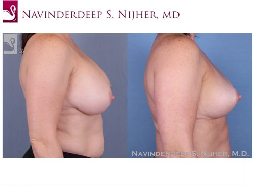 Breast Revisions Case #52739 (Image 3)