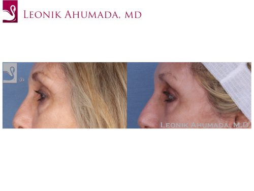 Eyelid Surgery Case #49754 (Image 3)