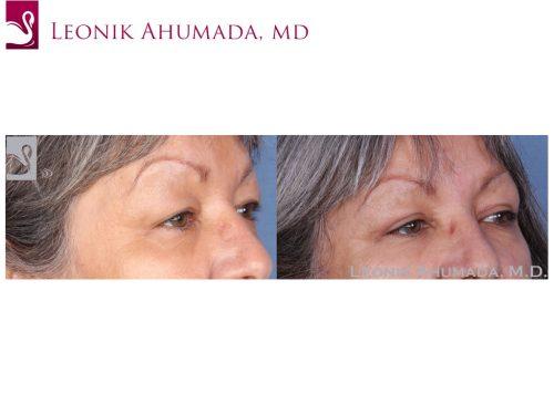 Eyelid Surgery Case #55079 (Image 2)