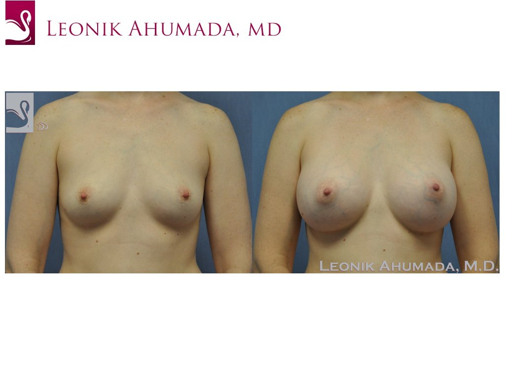 Breast Augmentation Case #19739 (Image 1)