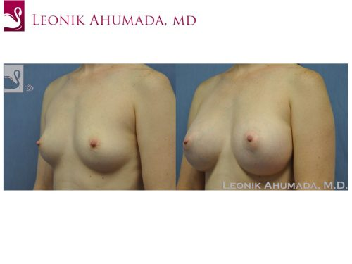 Breast Augmentation Case #19739 (Image 2)