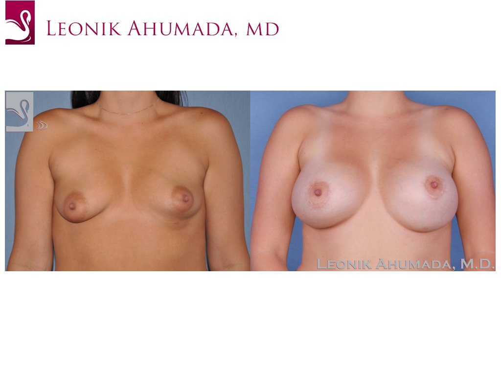 Breast Augmentation Case #24770 (Image 1)
