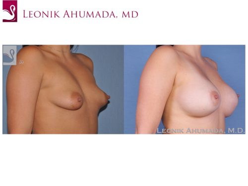 Breast Augmentation Case #24770 (Image 2)