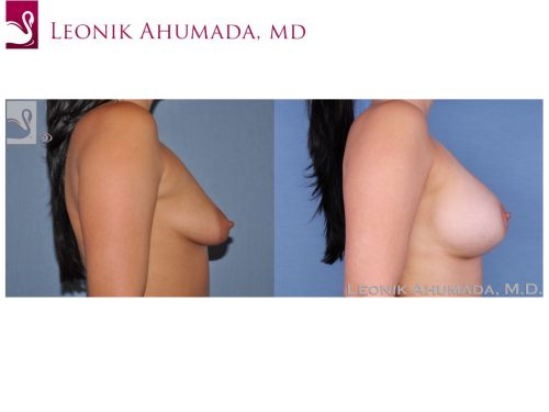 Breast Augmentation Case #24770 (Image 3)