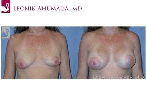 Breast Augmentation Case #37627 (Image 1)