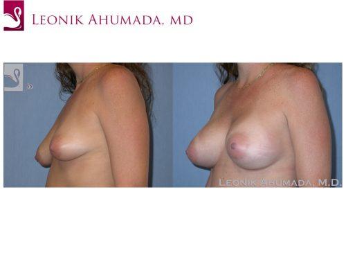 Breast Augmentation Case #37627 (Image 2)