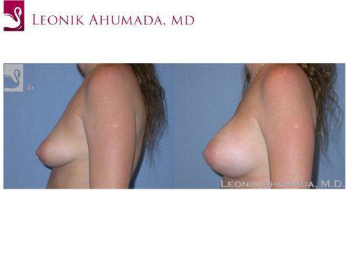 Breast Augmentation Case #37627 (Image 3)