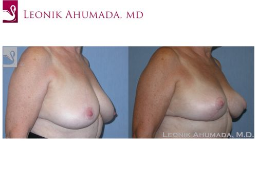 Female Breast Reduction Case #38113 (Image 2)