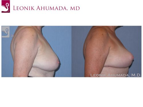 Female Breast Reduction Case #38113 (Image 3)
