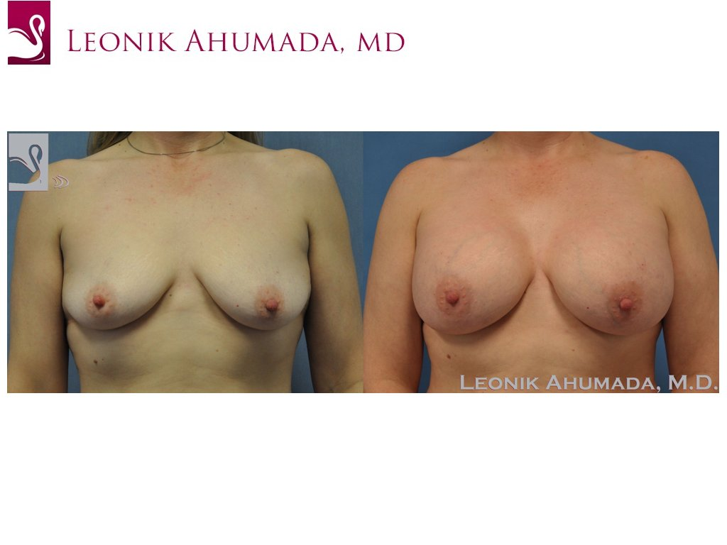 Breast Augmentation Case #40048 (Image 1)