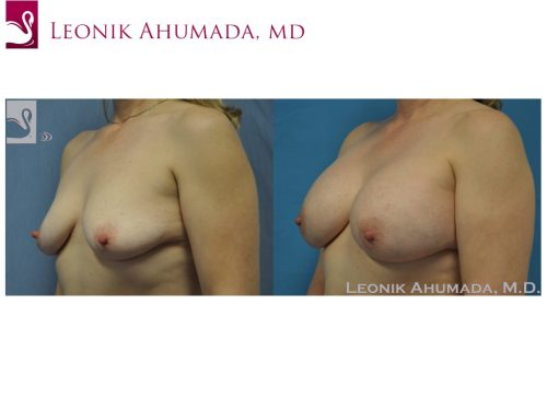 Breast Augmentation Case #40048 (Image 2)