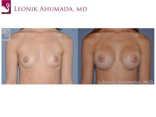 Breast Augmentation Case #49775 (Image 1)
