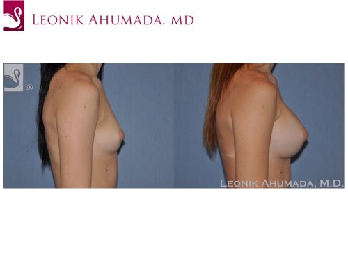 Breast Augmentation Case #49775 (Image 3)