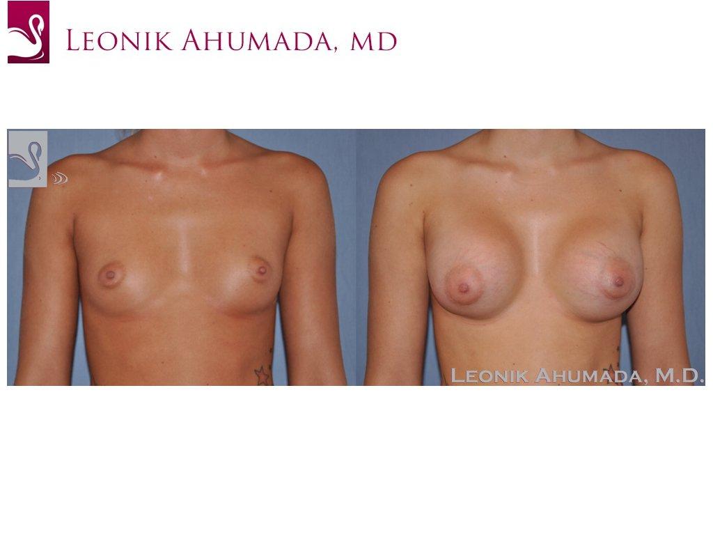 Breast Augmentation Case #50014 (Image 1)