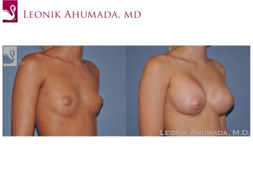 Breast Augmentation Case #50014 (Image 2)