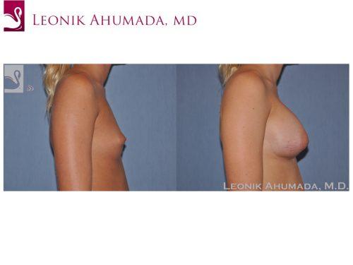 Breast Augmentation Case #50014 (Image 3)
