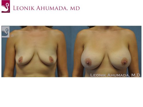 Breast Augmentation Case #50914 (Image 1)