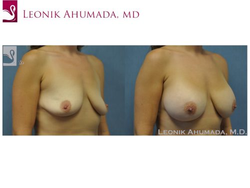 Breast Augmentation Case #50914 (Image 2)