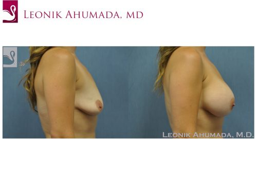 Breast Augmentation Case #50914 (Image 3)