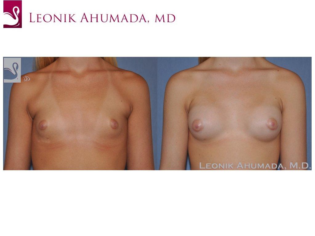 Breast Augmentation Case #51185 (Image 1)