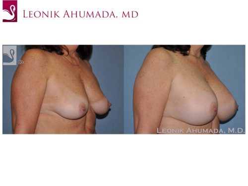 Breast Augmentation Case #51337 (Image 2)