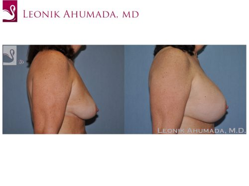 Breast Augmentation Case #51337 (Image 3)