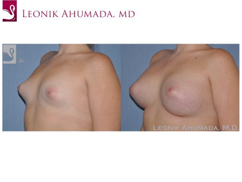 Breast Augmentation Case #51783 (Image 2)