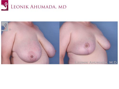 Female Breast Reduction Case #55396 (Image 2)