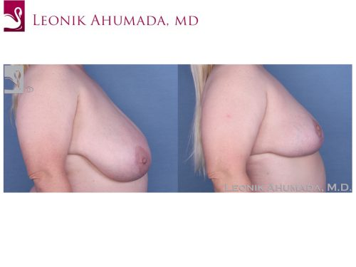 Female Breast Reduction Case #55396 (Image 3)