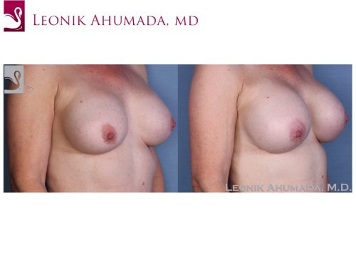Breast Revisions Case #55422 (Image 2)