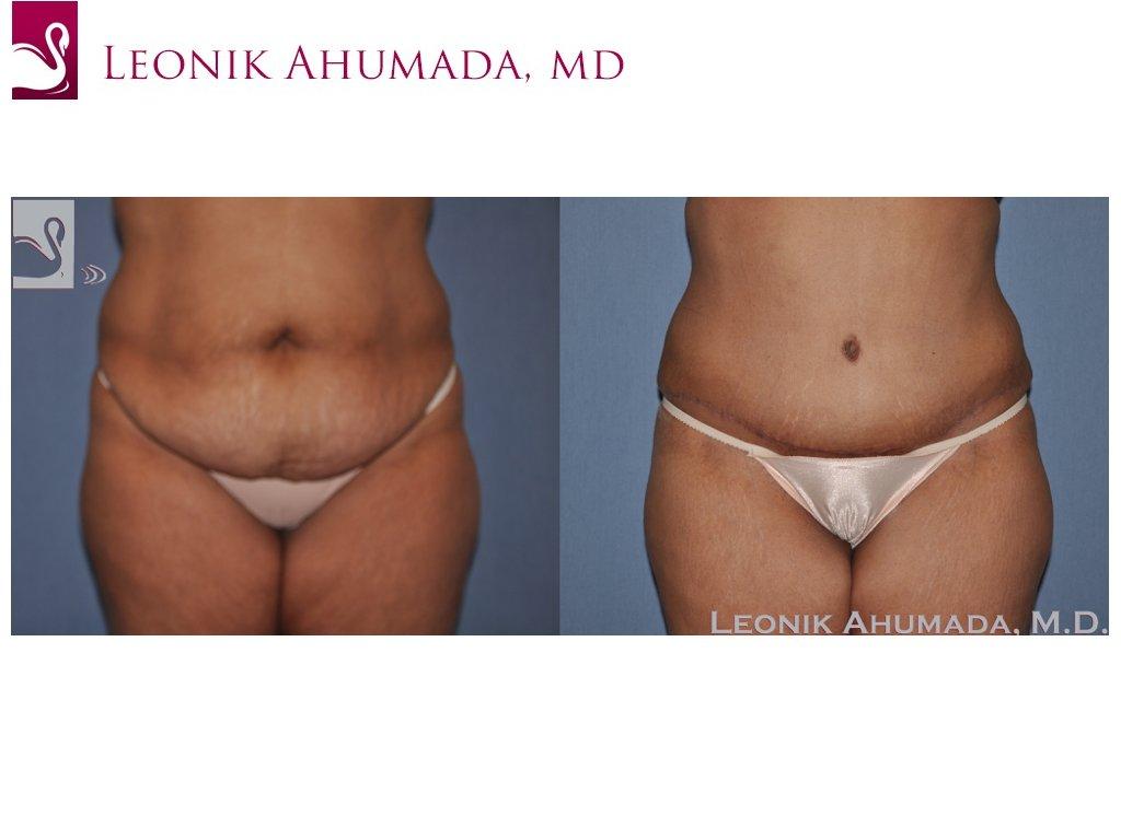 Abdominoplasty (Tummy Tuck) Case #34361 (Image 1)