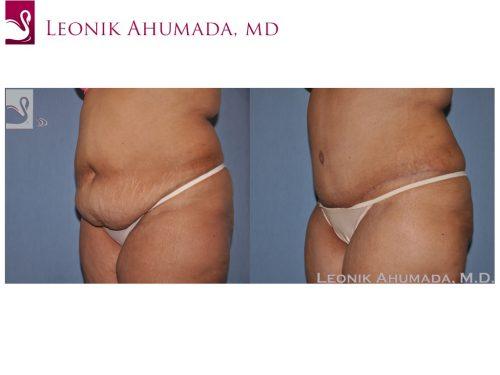 Abdominoplasty (Tummy Tuck) Case #34361 (Image 2)