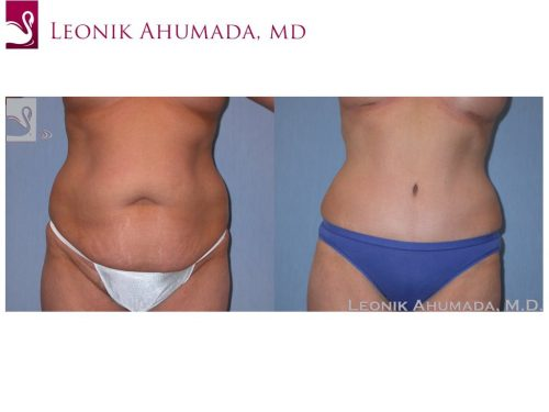 Abdominoplasty (Tummy Tuck) Case #38820 (Image 1)