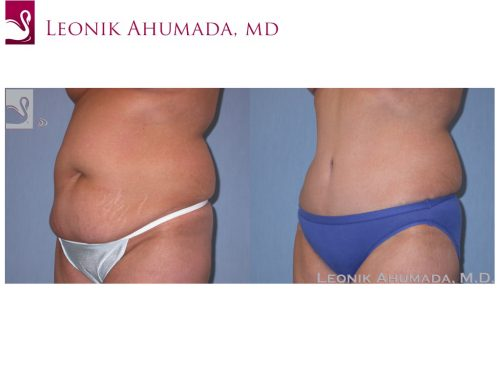 Abdominoplasty (Tummy Tuck) Case #38820 (Image 2)
