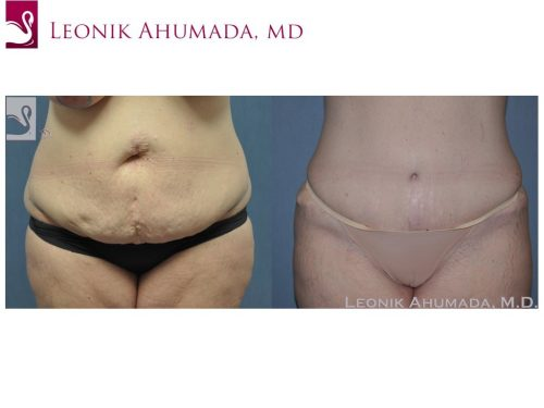 Abdominoplasty (Tummy Tuck) Case #48608 (Image 1)