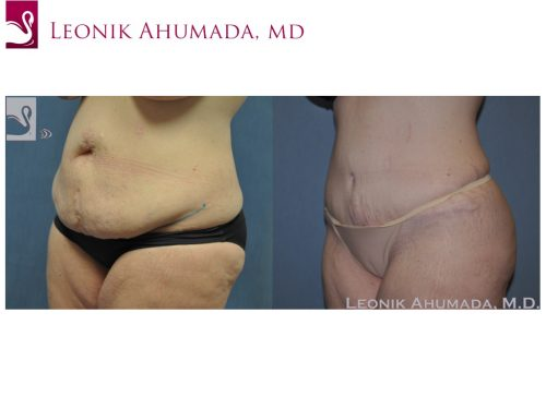 Abdominoplasty (Tummy Tuck) Case #48608 (Image 2)