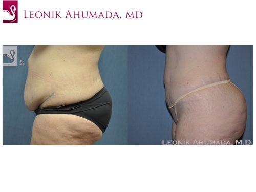 Abdominoplasty (Tummy Tuck) Case #48608 (Image 3)