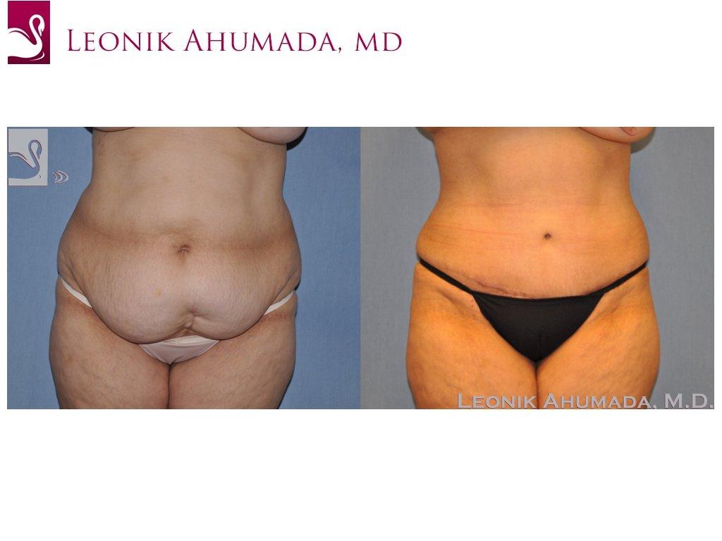 Abdominoplasty (Tummy Tuck) Case #49088 (Image 1)