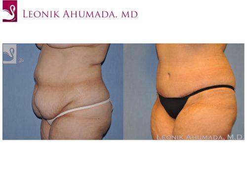 Abdominoplasty (Tummy Tuck) Case #49088 (Image 2)