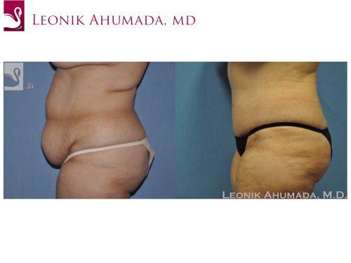 Abdominoplasty (Tummy Tuck) Case #49088 (Image 3)