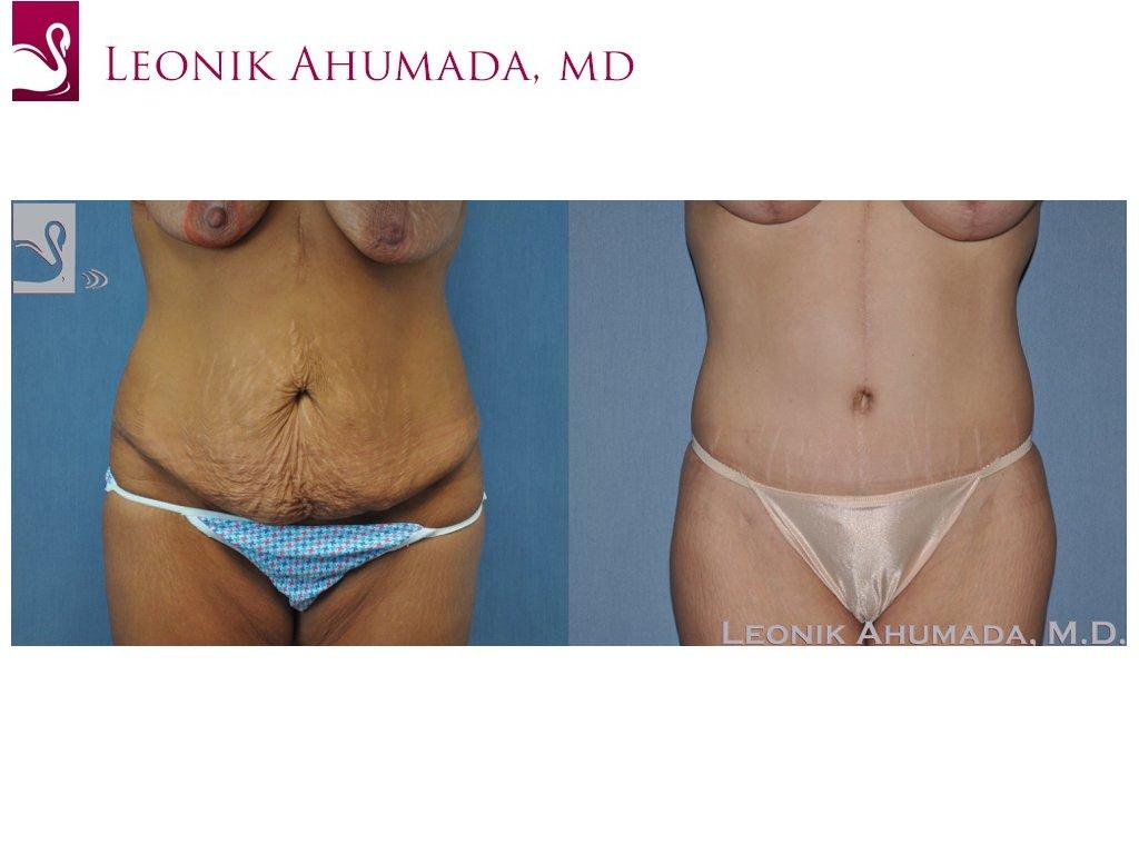 Abdominoplasty (Tummy Tuck) Case #49326 (Image 1)