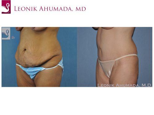 Abdominoplasty (Tummy Tuck) Case #49326 (Image 2)