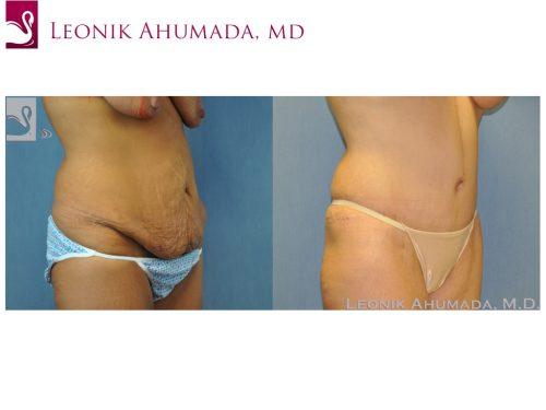 Abdominoplasty (Tummy Tuck) Case #49326 (Image 3)