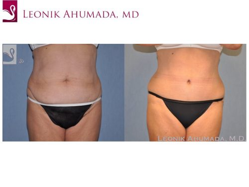 Abdominoplasty (Tummy Tuck) Case #49564 (Image 1)