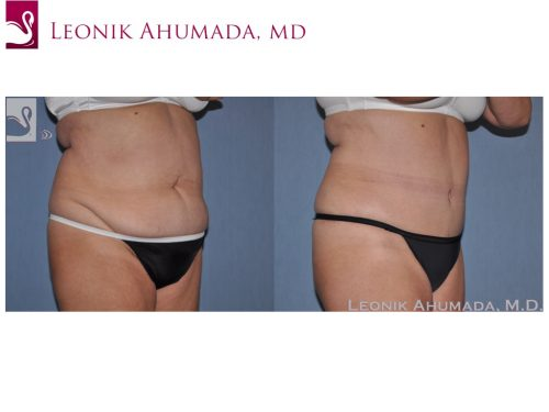 Abdominoplasty (Tummy Tuck) Case #49564 (Image 2)