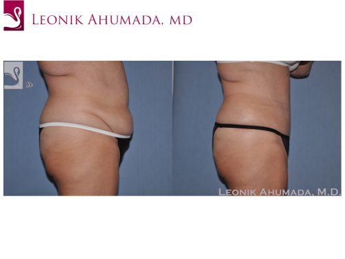 Abdominoplasty (Tummy Tuck) Case #49564 (Image 3)