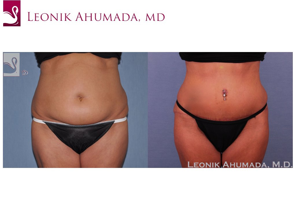 Abdominoplasty (Tummy Tuck) Case #51412 (Image 1)