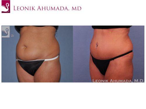 Abdominoplasty (Tummy Tuck) Case #51412 (Image 2)