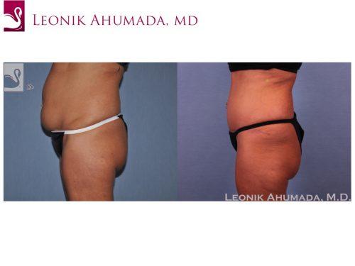 Abdominoplasty (Tummy Tuck) Case #51412 (Image 3)
